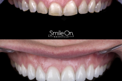 Smile On Nashville patient 3 comparison