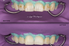 Smile On Nashville Fluorosis