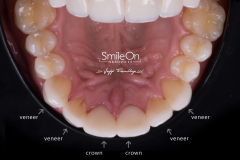 Smile On Nashville patient 4 veneers