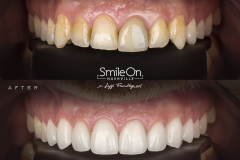 Smile On Nashville Veneers patient 6 comparison