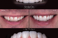 Smile On Nashville patient 12 comparison