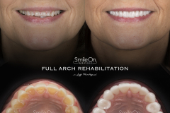 Smile On Nashville Full Mouth Rehabilitation