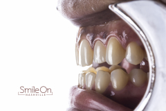Smile On Nashville Veneers after