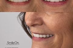 Smile On Nashville Full Mouth Rehabilitation before/after