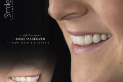 Smile On Nashville smile makeover