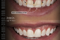 Smile On Nashville whitening before/after