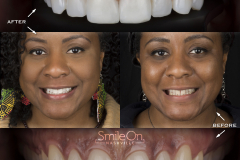 Smile On Nashville patient 14 comparison