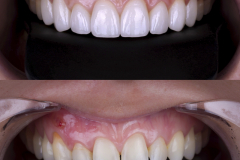 Smile On Nashville Veneers before/after